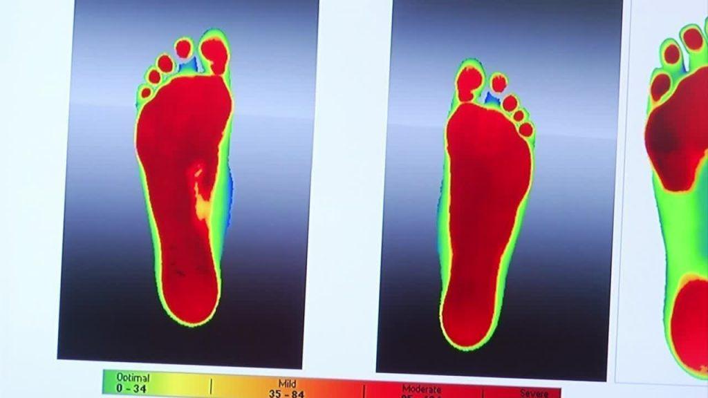 Study shows Foot Levelers orthotics reduce back pain